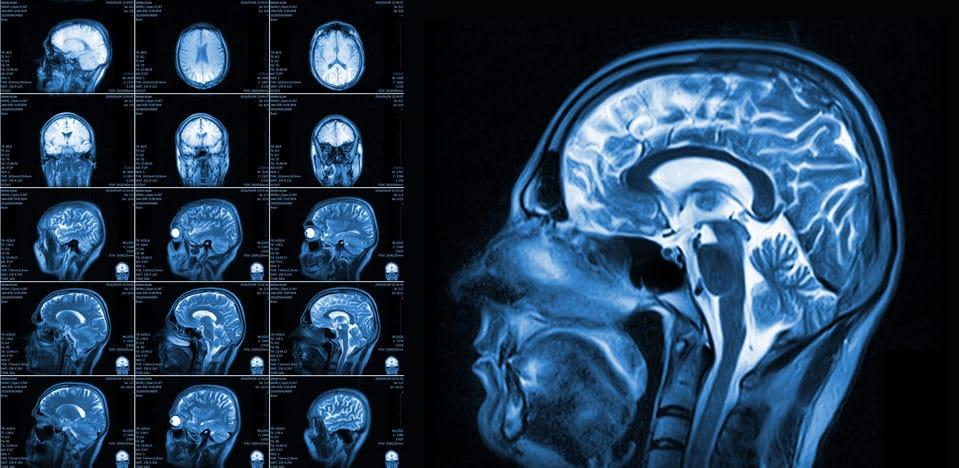 Rodzaje zaburzeń mowy. Alalia. Dyslalia. Dyzartria. Wywiad z Anna Michajłenko -logopeda w neuro-clinic.life w Rosji.